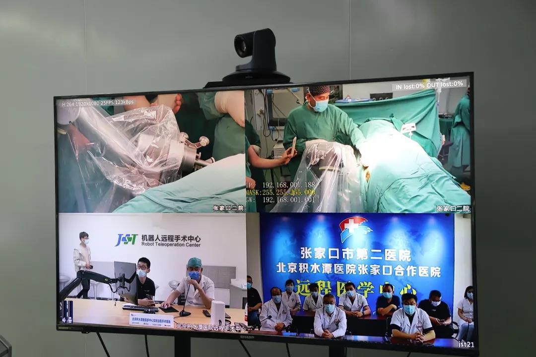 张家口市第二医院成功完成两例5G骨科远程机器人手术